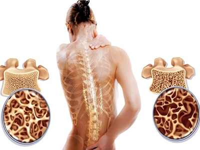 Как выглядит остеопороз?